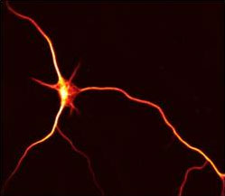 Baas laboratory research image, microtubule arrays of the neuron.
