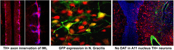 Three images showing TH+ innervation of IML, GFP expression in N. Gracilis and No DAT in A11 nucleus TH+ neurons