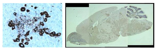 Immunohistochemistry of liver and brain sections of C57BL/6 mice infected with recombinant MHV-A59 strain