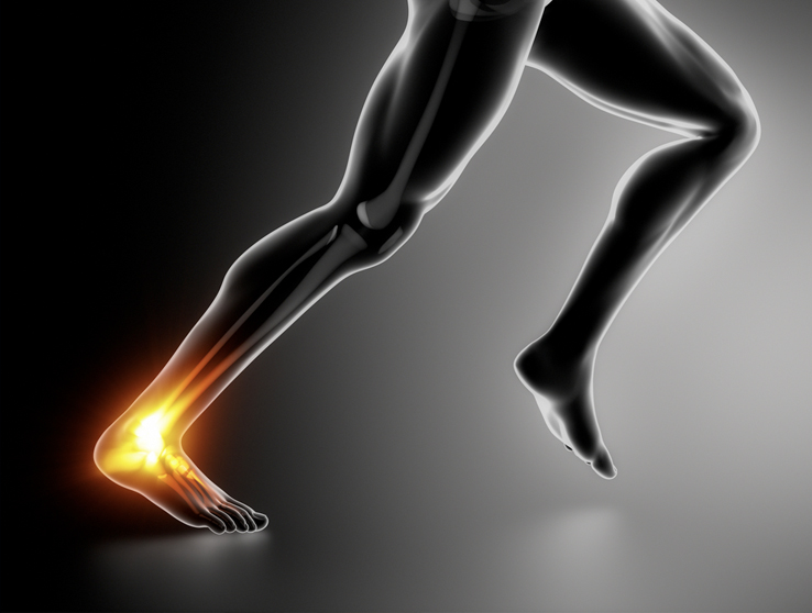 The Biomechanics of Achilles Tendinopathy in Runners