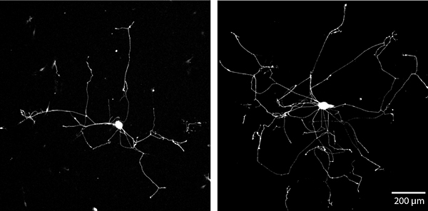 Elongated Growth Neurons
