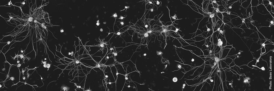 An image of DRG Neurons from the Baas Lab at Drexel University College of Medicine.