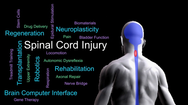 Drexel Spinal Cord Research Center - Department of
