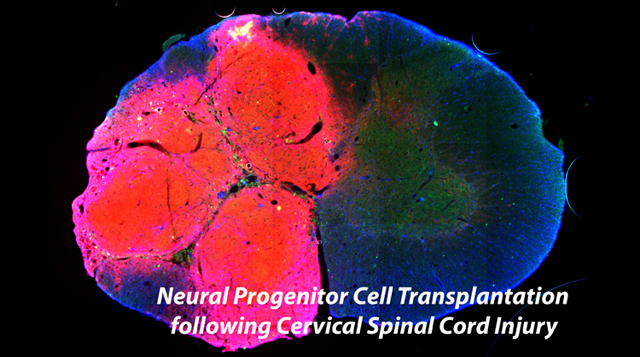Neural Progenitor Cell Transplantation following Cervical Spinal Cord Injury