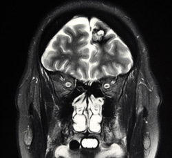 Department of Neurology Stroke Research at Drexel University