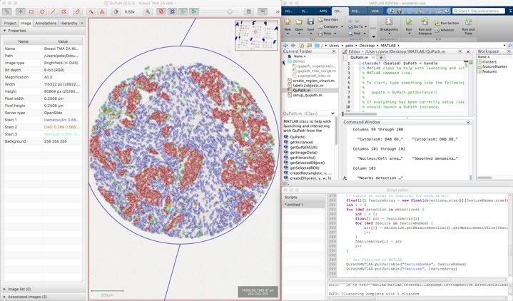 H&E Histology Color Normalization Instructions: QuPath