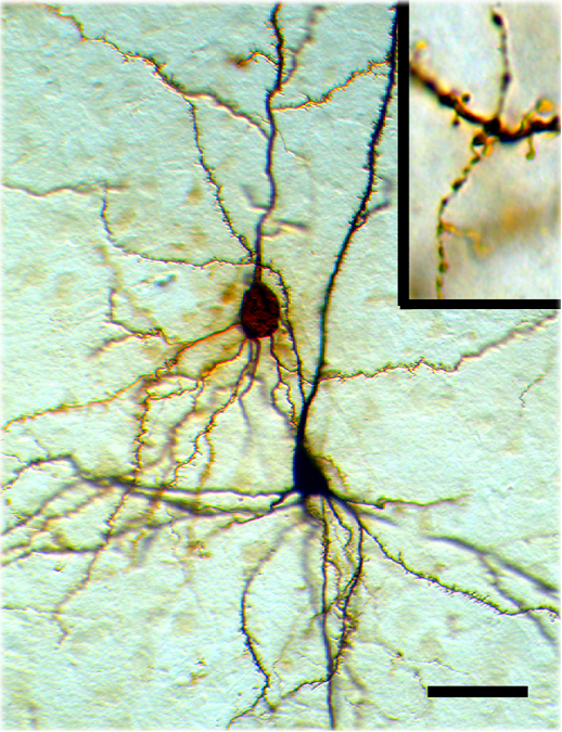 Biocytin-labeled interneurons and pyramidal neurons.