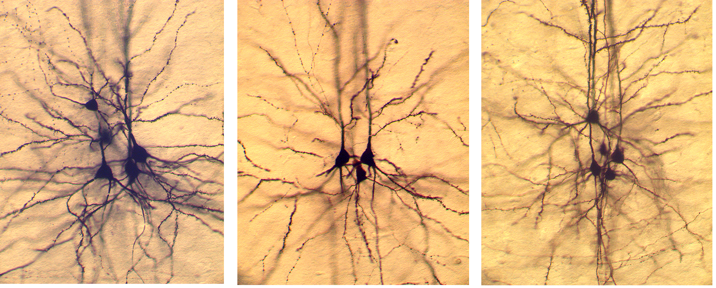 Biocytin-labeled layer 5 pyramidal neurons.