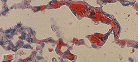Drexel Histotechnology program image - Oil red O stain fat emboli in lung.