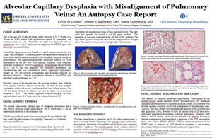 Pathologists' Assistant Research: Alveolar Capillary Dysplasia with Misalignment of Pulmonary Veins