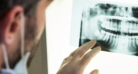 How to Apply: Oral & Maxillofacial Surgery Residency