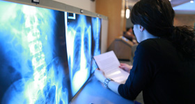 Medical student reviewing x-ray images at a hospital.