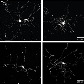 Neurons grew more branched or more elongated, depending on experimental conditions, in the research by Donnelly, Twiss and colleagues.