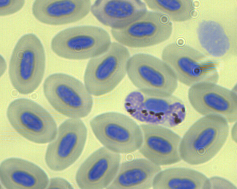 Haemoproteus parasites infect one of the red blood cells shown in this sample taken from a bird in Malawi. Credit: Jacob Mertes, University of North Dakota