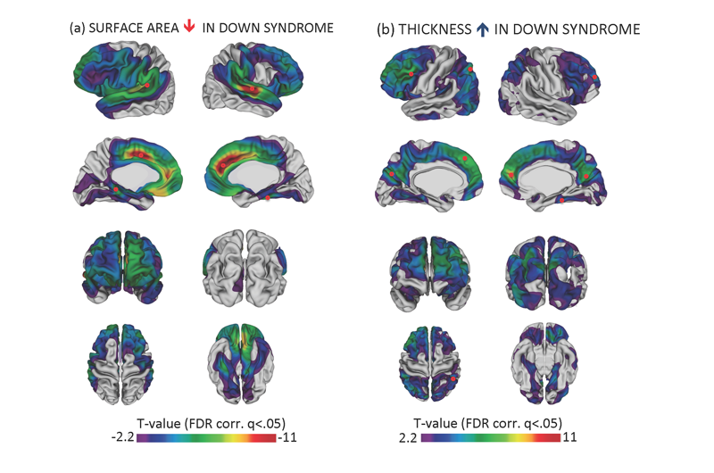 brain images show reduced cortical surface area and increased cortical thickness in Down Syndrome