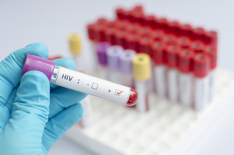 Technician holding a blood sample for HIV testing.