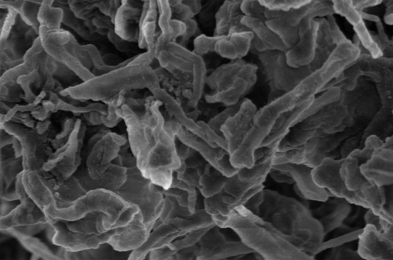 Drexel researchers have reported that adding nanodiamonds to the electrolyte solution in lithium batteries can prevent the formation of dendrites, the tendril-like deposits of ions that can grow inside a battery over time and cause hazardous malfunctions. (Photo courtesy of Drexel University and Tsinghua University).