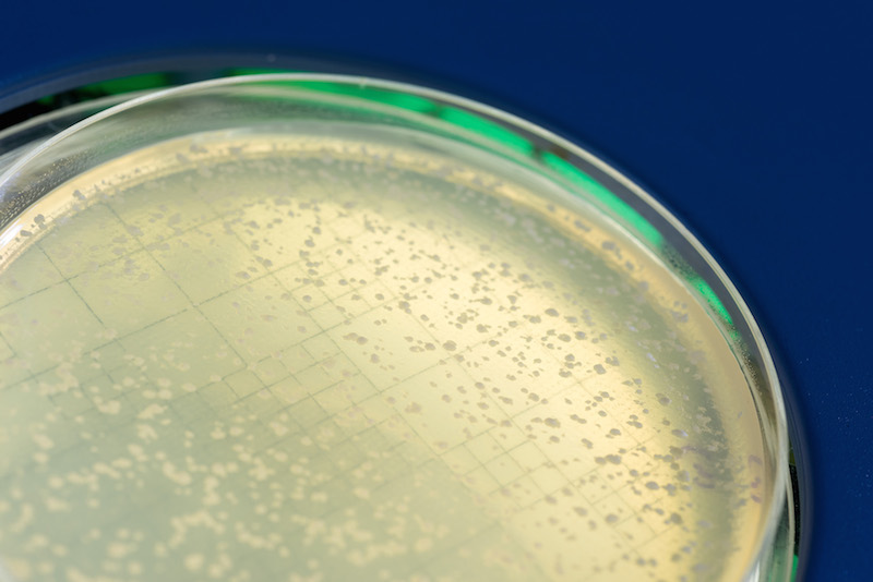 Petri dish with yeast colonies that survived DNA breakage by Rad52-guided inverse RNA strand exchange (Credit: Georgia Tech)