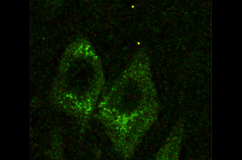 A dyed green image of a fibers in a human hippocampus