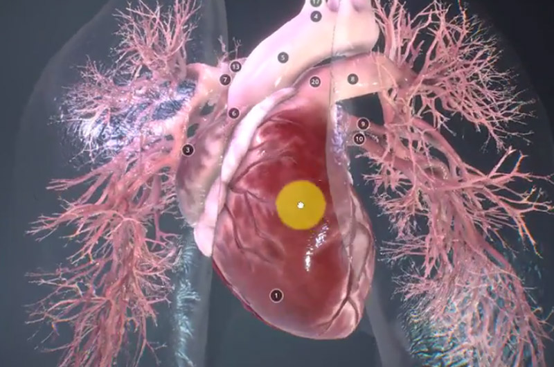 screenshot of a heart diagram