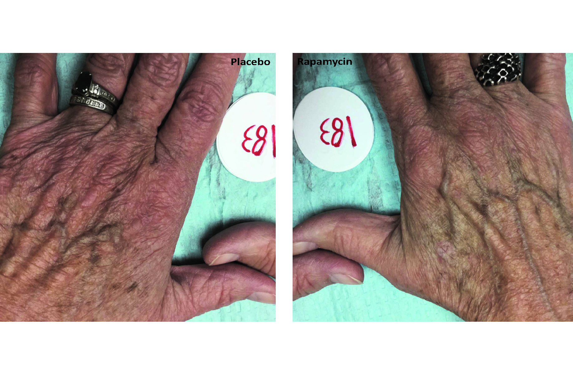 Hand treated with rapymycin alongside placebo untreated hand