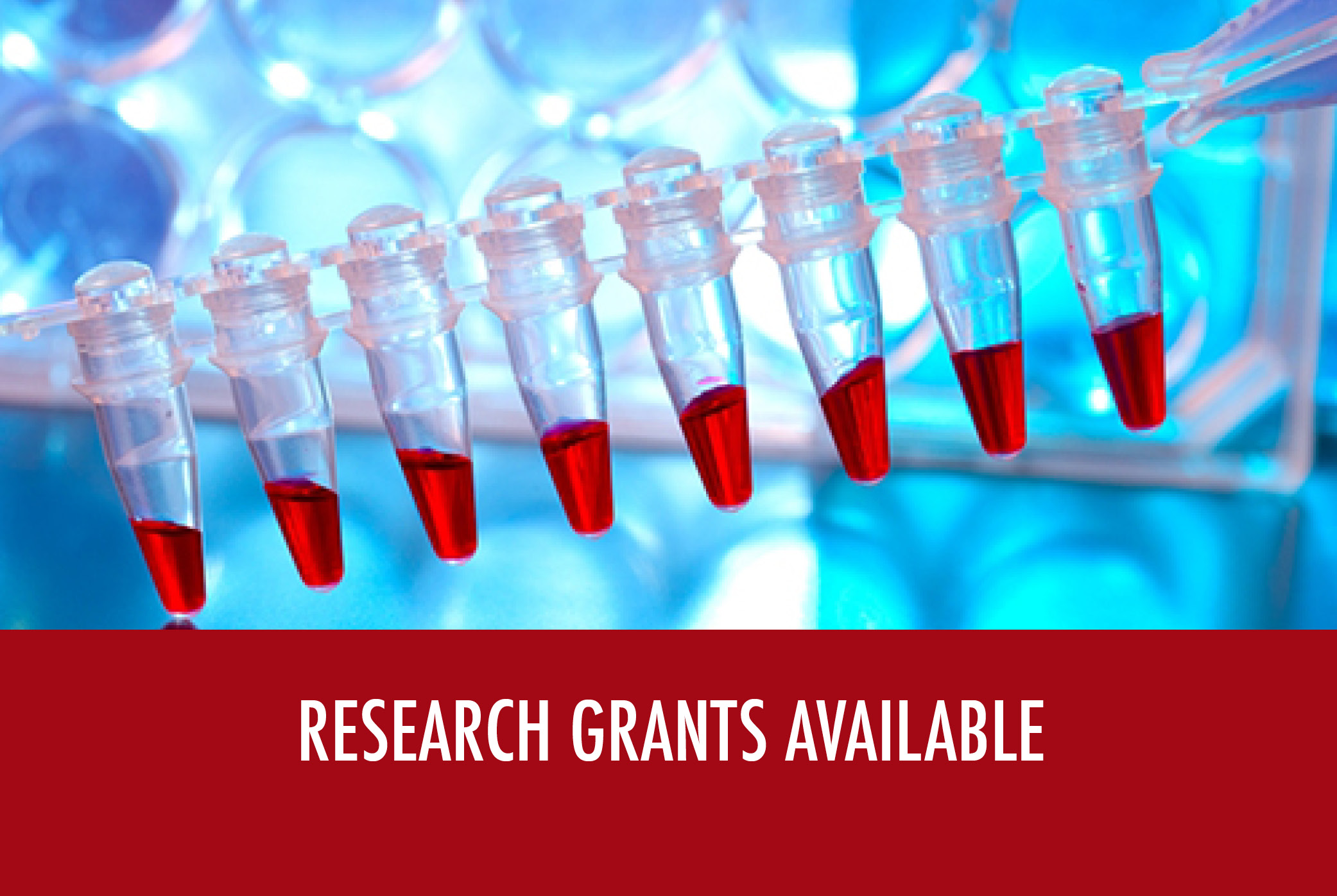 Research Grant application is now available
